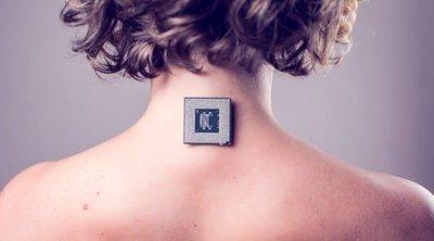 Biohacking: una mujer se implanta un chip en su antebrazo para poder abrir su coche