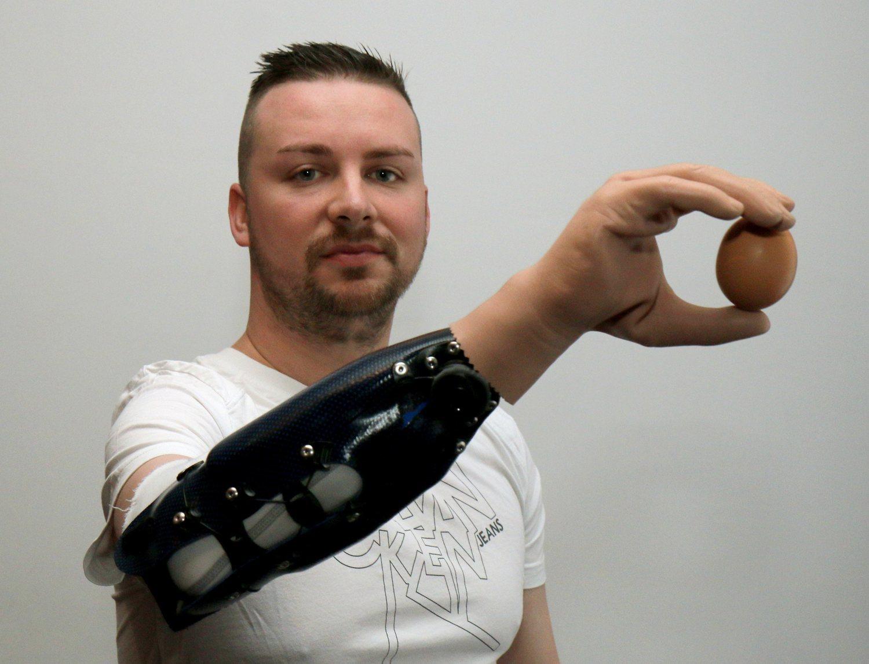 La tecnología ya ayuda a la medicina actualmente. Es el caso de Milorad Marinkovic, quien sufrió un accidente que le costó el antebrazo derecho y que ahora posee una prótesis biónica que le ayuda con su día a día.